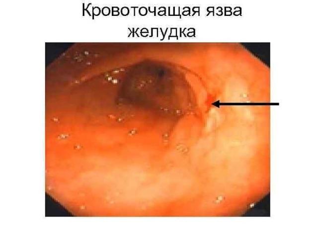 Хроническая язва антрального отдела желудка: код по МКБ-10, лечение