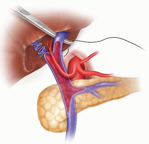 Тромбоз воротной вены: причины, прогноз, симптомы и лечение