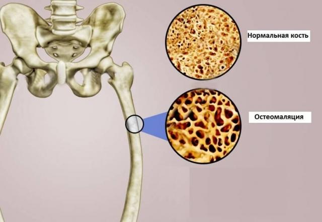 Что такое остеомаляция у взрослых и при беременности: причины, признаки на рентгене, симптомы, лечение, профилактика