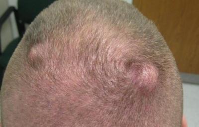 Удаление липом на лице и голове: лазером и хирургическим путем, цена, видео с операций, отзывы