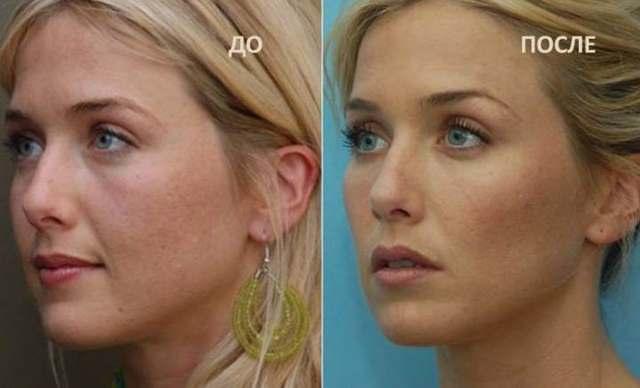Что такое комки Биша: удаление, фото до и после, операция, виды, видео