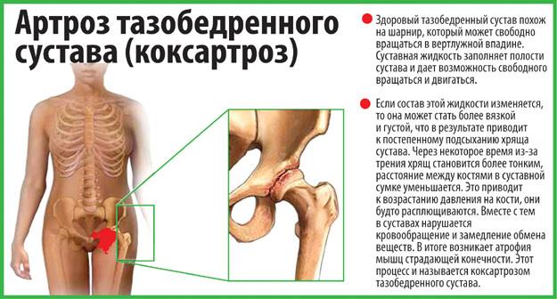 Хондропротекторы для позвоночника, коленного или тазобедренного сустава: при артрозе, коксартрозе, остеохондрозе