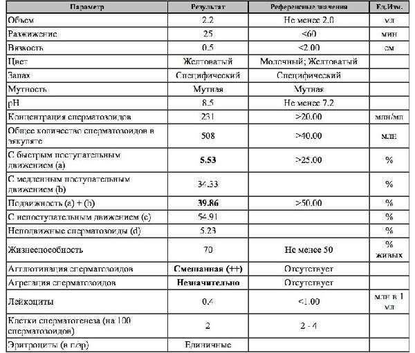 Спермограмма: что показывает, как подготовиться и как сдавать, расшифровка результатов