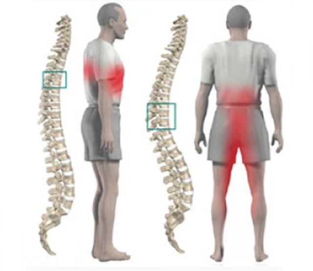 Спондилоартроз позвоночника 1, 2, 3, 4 степени: симптомы, как лечить, ЛФК, МКБ-10, гимнастика, отзывы