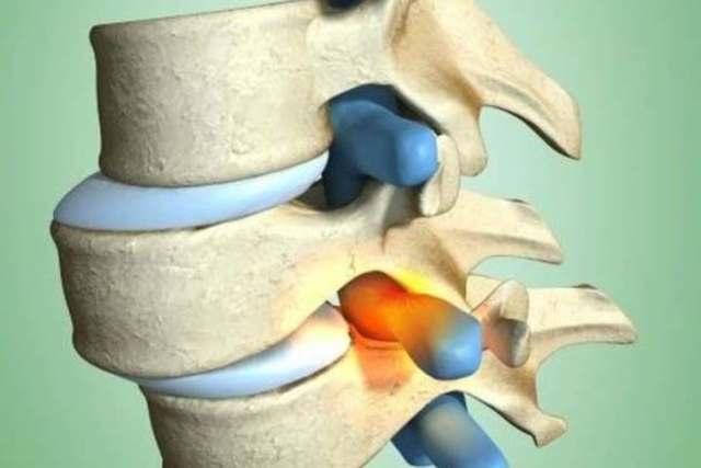 Спондилолистез (смещение позвонков) поясничного и крестцового отдела позвоночника: симптомы, лечение, упражнения, фото