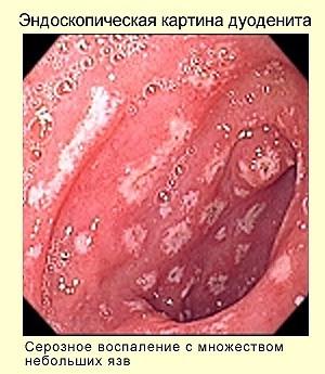Хронический дуоденит у взрослых и детей: код по МКБ-10, симптомы и лечение, народные средства