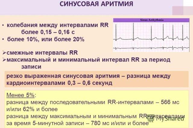 Холтеровское мониторирование: цена, заключение, расшифровка результатов, показатели нормы