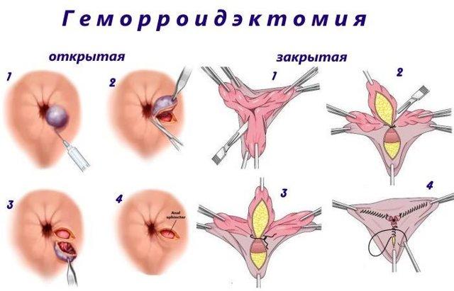 Тромбоз наружного или внутреннего геморроидального узла: фото, лечение, симптомы