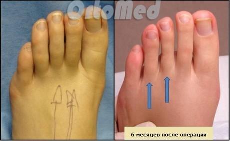 Укорачивание пальцев ног: цена, послеоперационный период, отзывы, осложнения, техника операции