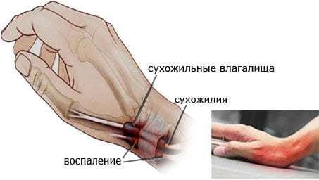 Стенозирующий тендовагинит кисти и лучезапястного сустава: код по МКБ-10, симптомы, лечение в домашних условиях, фото упражнений