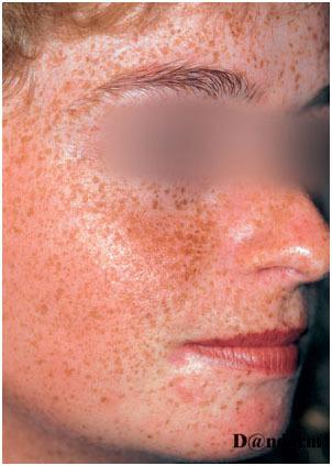 Эфелиды (веснушки): причины возникновения, симптомы, лечение, диагностика