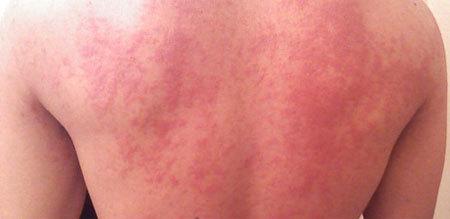Хроническая крапивница: классификация, причины, симптомы, диагностика, лечение