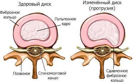 Что такое циркулярная протрузия межпозвонковых дисков l3, l4, l5, s1 поясничного отдела: лечение