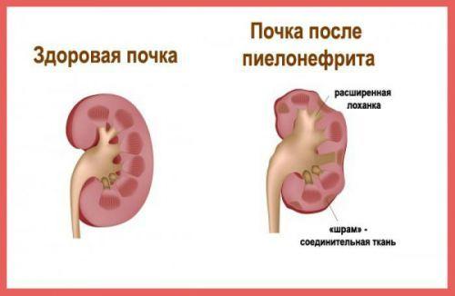 Фокально-сегментарный, диабетический, очаговый гломерусклероз: причины, симптомы, диагностика, лечение