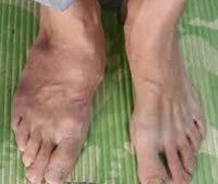 Стопа Шарко: код по МКБ-10,симптомы и признаки, лечение диабетической остеоартропатии, фото ноги и сустава