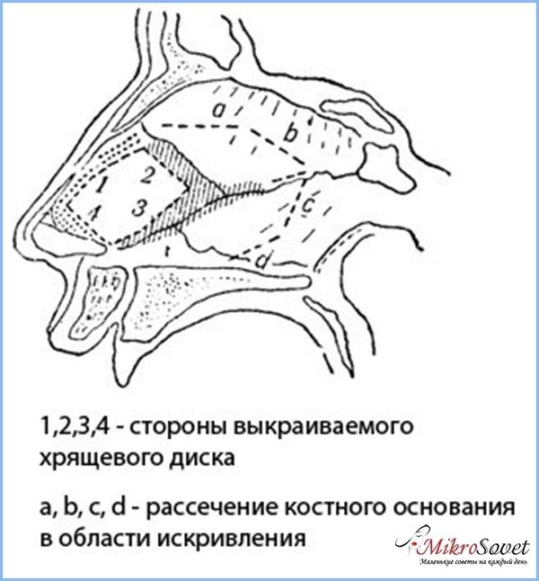 Строение гортани и горла человека с фото и описанием: заболевания и патологии