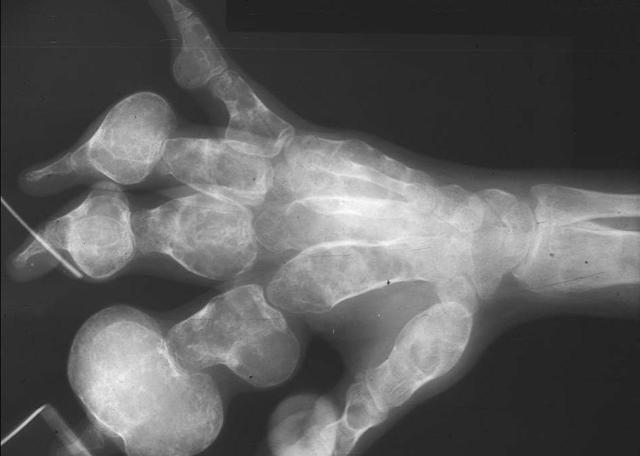 Хондросаркома кости: фото, симптомы, лечение и выживаемость