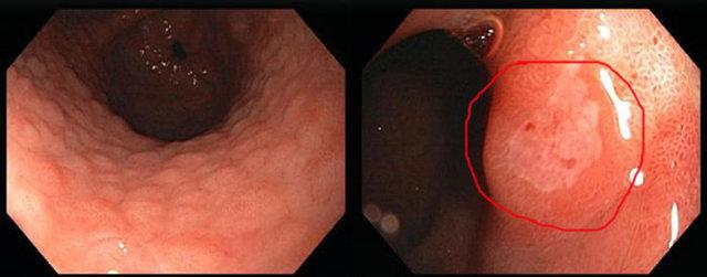 Эритематозный гастрит: экссудативный, очаговый поверхностный, симптомы, лечение