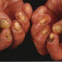Эрозия кожи: причины появления, симптомы, признаки, лечение
