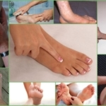 Тендинит коленного сустава: код по МКБ-10, симптомы, лечение