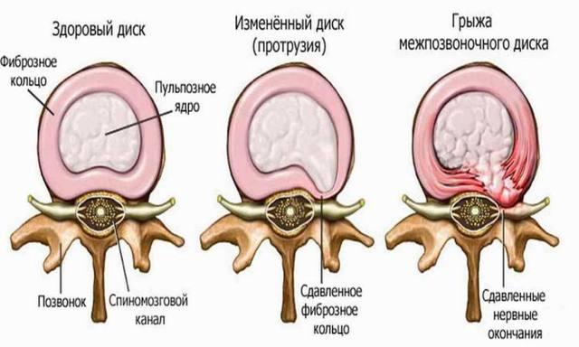 Что такое дорзальная протрузия межпозвонкового диска l5-s1 и c5-c6: лечение, отличия от дорзальной и медианной