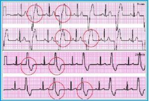 Стойкая, желудочковая, бессимптомная тригеминия сердца: лечение, эпизоды, причины