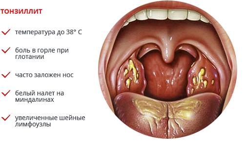 Хронический компенсирующий тонзиллит: лечение в стадии ремиссии
