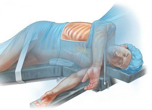 Торакоскопия легких: показания, подготовка, время диагностики, отзывы, цены