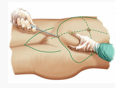 Эндоскопическая абдоминопластика: показания, противопоказания, техника, осложнения, побочные эффекты, отзывы, цена