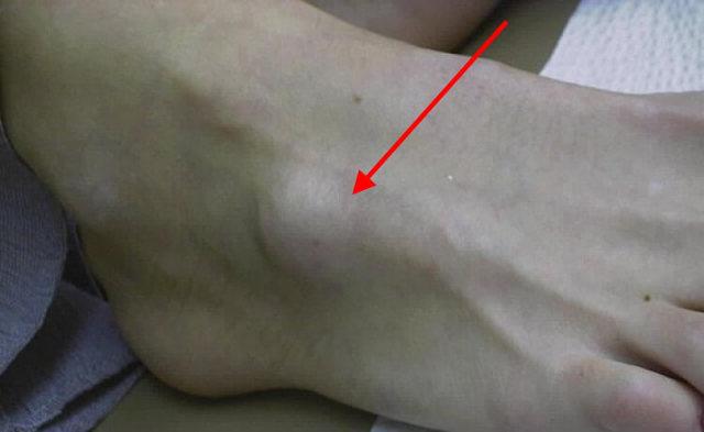 Шишка на стопе у ребенка: сбоку под кожей, с внешней или внутренней стороны, сверху на подъеме, посередине