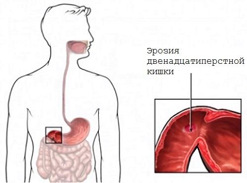 Эрозия тонкого и толстого кишечника: симптомы, лечение, народные средства, диета, препараты