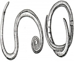 Феномен Кебнера или изоморфная реакция: симптомы, фото, устранение, причины