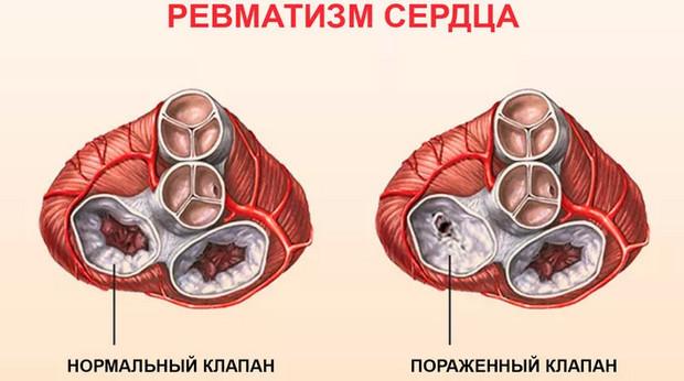 Хроническая ревматическая болезнь сердца: классификация, этиология, диагностика