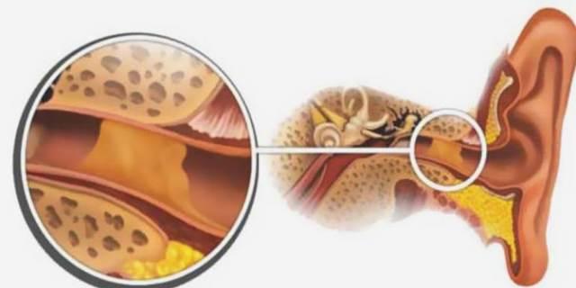 Что делать если заложило уши при простуде: лечение народными средствами