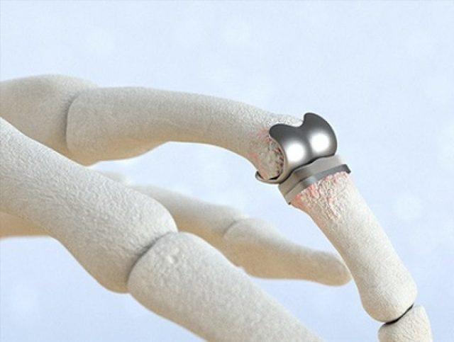 Что делать, если болят косточки на пальцах рук: как убрать узелки Гебердена, лечение наростов и ревматоидных шишек