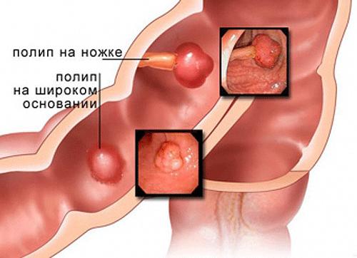 Чем опасен полип желчного пузыря: симптомы, причины возникновения, лечение, диета, отзывы