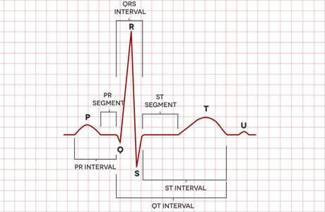 ЭКГ (электрокардиография): расшифровка, таблица показателей, результаты