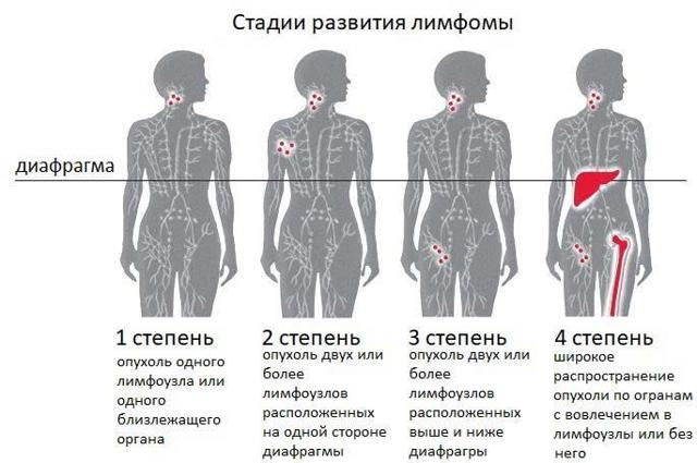 Т-клеточная лимфома: кожи, лимфобластная, ангиоиммунобластная, прогноз и лечение