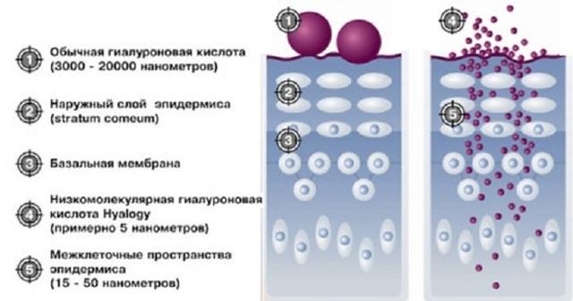 Увеличение точки g гиалуроновой кислотой: показания, противопоказания, проведение, осложнения, отзывы, цена