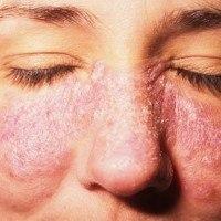 Язвы на коже: причины появления, симптомы и методы лечения