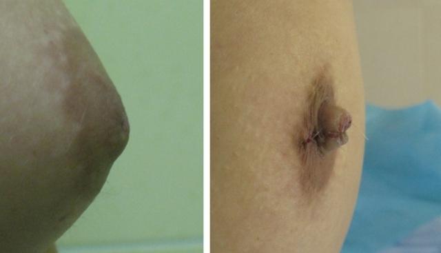 Швы после маммопластики: как обрабатывать, когда снимают, чем мазать, как убрать