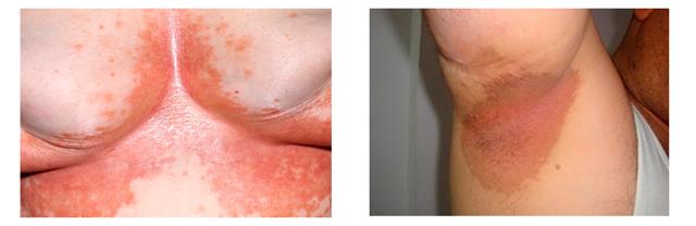 Эритразма (псевдомикоз): причины, лечение, диагностика, симптомы