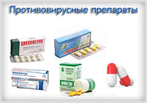 Фибринозная ангина: белый налет, фото, причины, симптомы, лечение