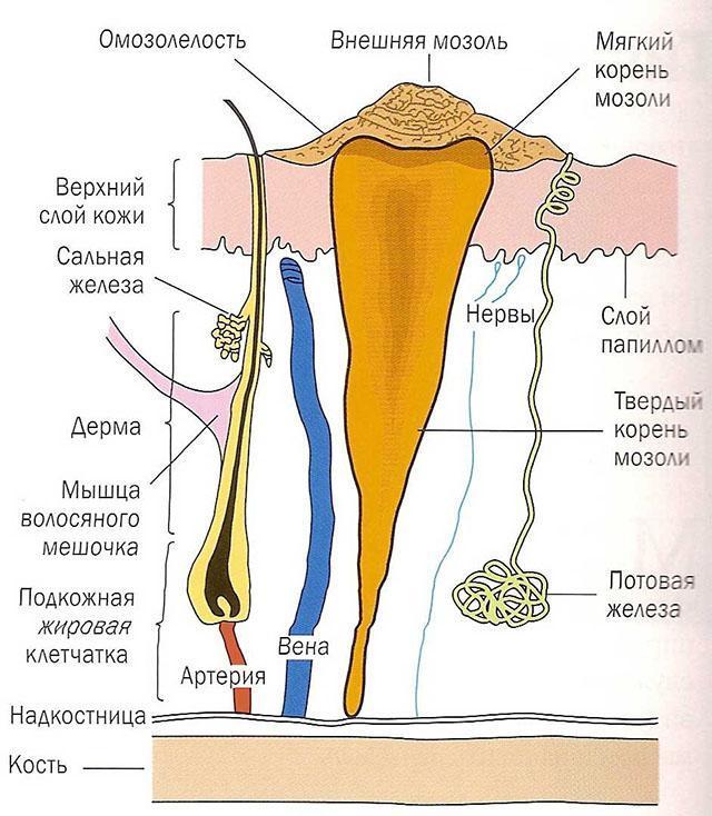 Стержневая мозоль: лечение, прогноз, симптомы, диагностика, причины