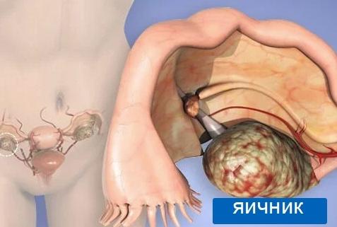 Фиброма яичника: симптомы, формы, причины, диагностика, лечение и прогноз
