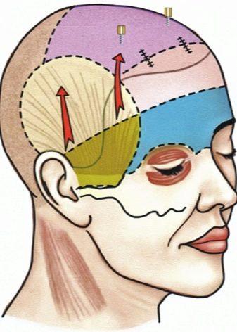 Эндоскопическая подтяжка лба и бровей (верхней части лица): последствия, отзывы, цена, фото до и после