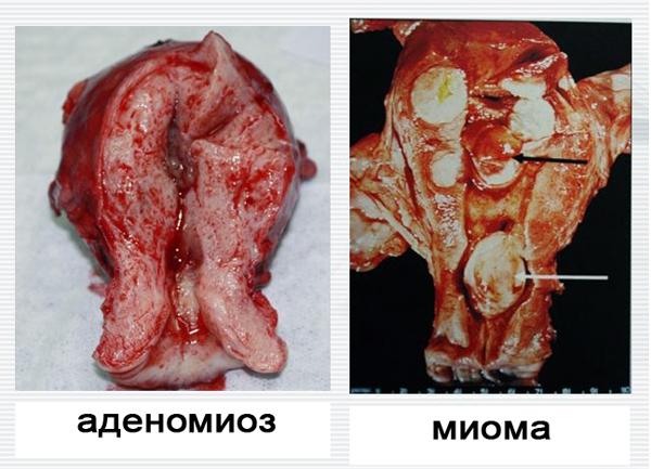 Узловая миома тела матки в сочетании с аденомиозом: лечение, эхопризнаки, прогноз