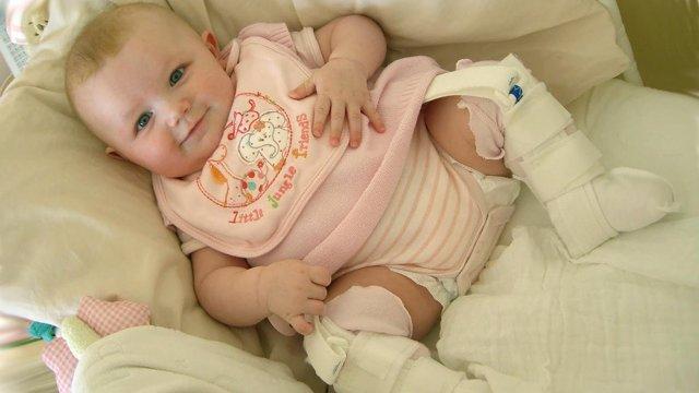 У ребенка, грудничка хрустят суставы: тазобедренный, кистей рук, плечевой, коленный, что делать