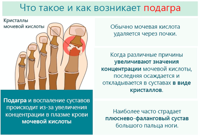 Что делать при обострении подагры: медикаментозное лечение, эффективные мази, неотложная помощь