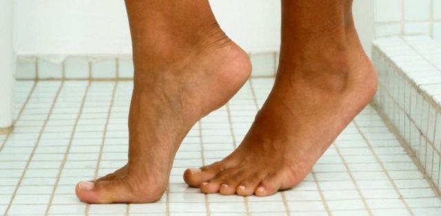 Эпидермофития кистей и стоп: лечение, прогноз, симптомы, диагностика, причины